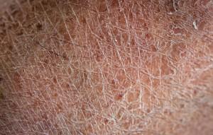 menopause-skin