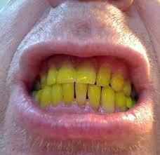 turmeric-tooth